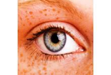 Hogyan védekezhetünk a pigmentfoltok kialakulása, illetve elszaporodása ellen